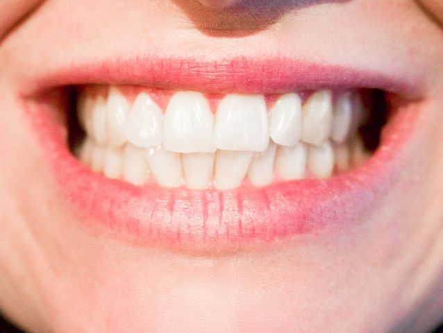 Woman smiling showing her perfect teeth
